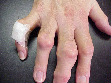 masalah gout