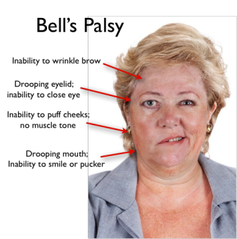 bell's palsy