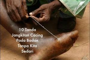 10 Tanda Jangkitan Cacing Pada Badan Tanpa Kita Sedari