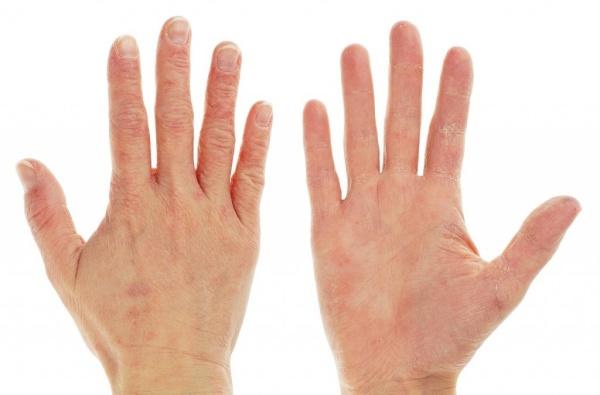 tangan kasar dan kering