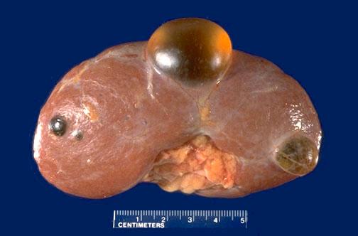 cyst-buah-pinggang