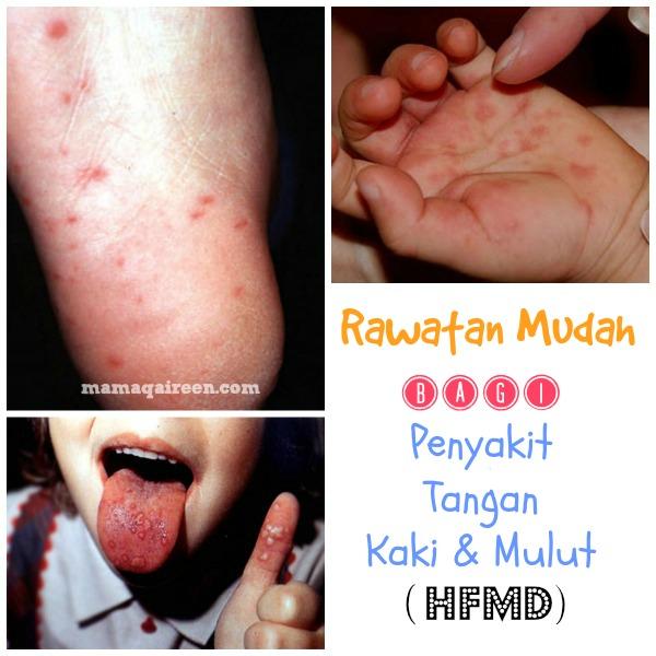 Penyakit Kaki, Tangan dan Mulut (HFMD)