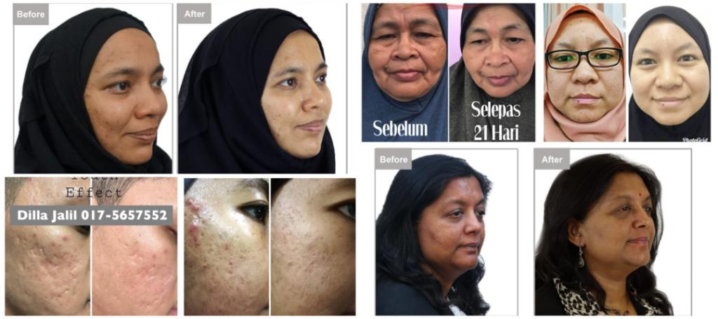 Testimoni-Youth-Skincare