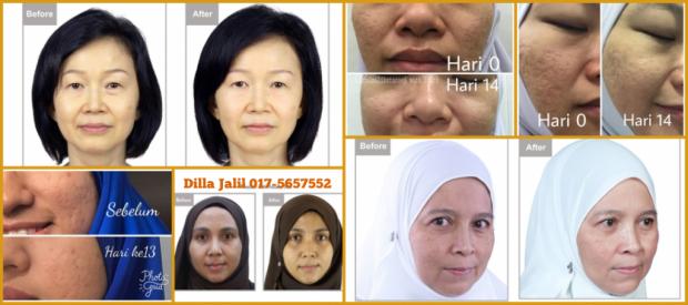 Testimoni Youth Skincare