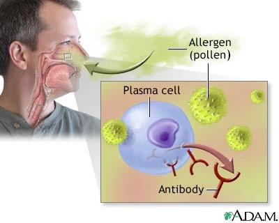 allergic_rhinitis