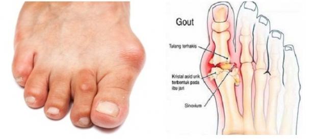 bagaimana penyakit gout terjadi?